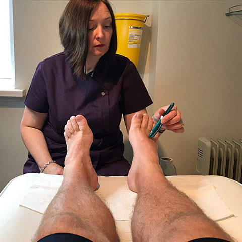 Treating Feet of a Diabetes Sufferer